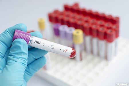 Half of all women with HIV in Europe are diagnosed late