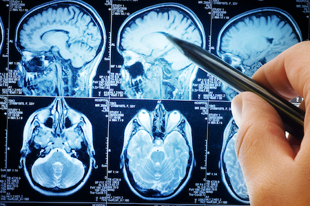 Brain complications found in some patients with severe COVID-19